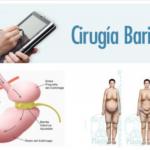 cirugia bariatrica en riobamba