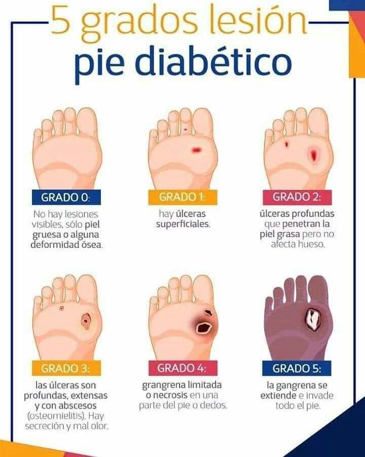 pie diabetico riobamba