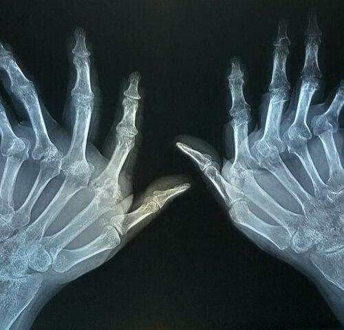 Artritis Reumatoidea | Artrosis | Lupus Riobamba – Tratamiento